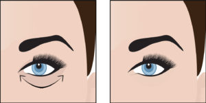 Treatment for bags under eyes